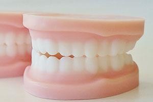仮歯にもこだわります