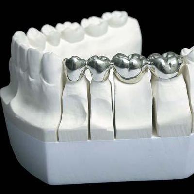 銀歯(パラジウム)